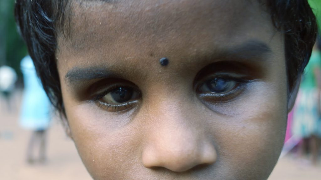 MGEHRI eye patient kid